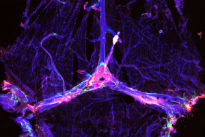 Microscopy image of blood vessels and drainage network in a mouse's brain outlined in blue and green, and dotted with clumps of the Alzheimer's protein amyloid beta in red
